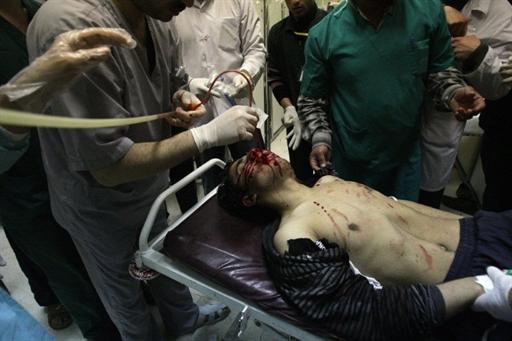 Un manifestant blessé en mars à Deraa : apparemment le personnel hospitalier n'avait pas encore renoncé à soigner les opposants !